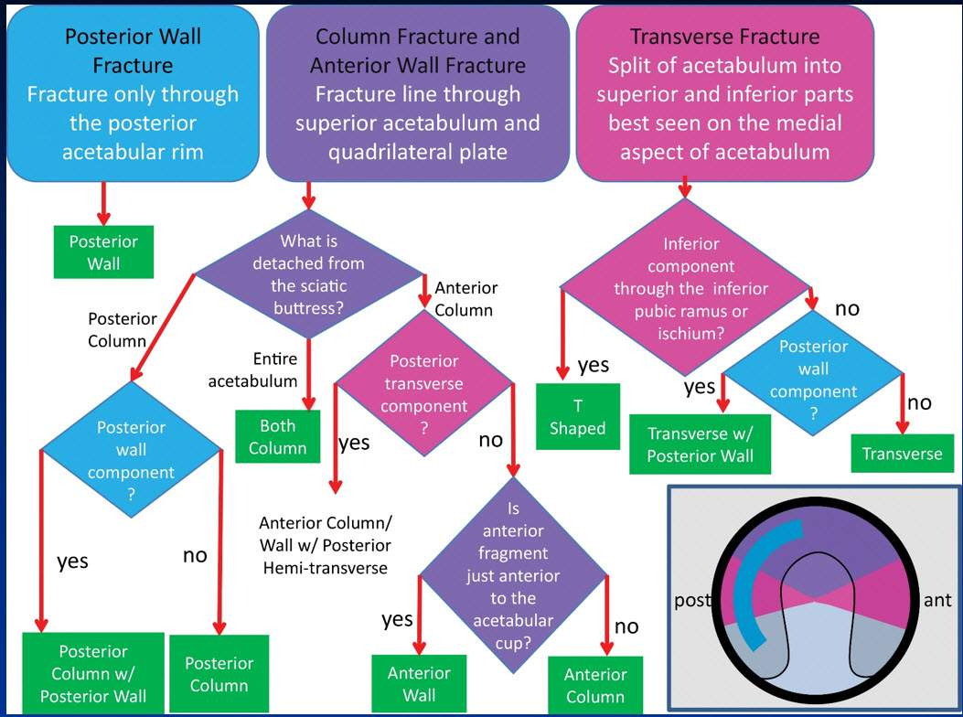Acetabular Fracture Classification Flow Chart